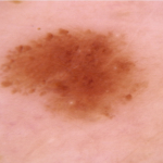 DermatoscopiePresentation2-150x150